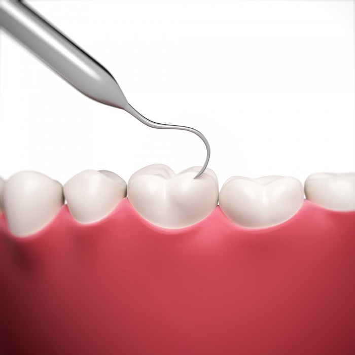 Wie wird eine Parodontitis systematisch zum Erfolg behandelt?